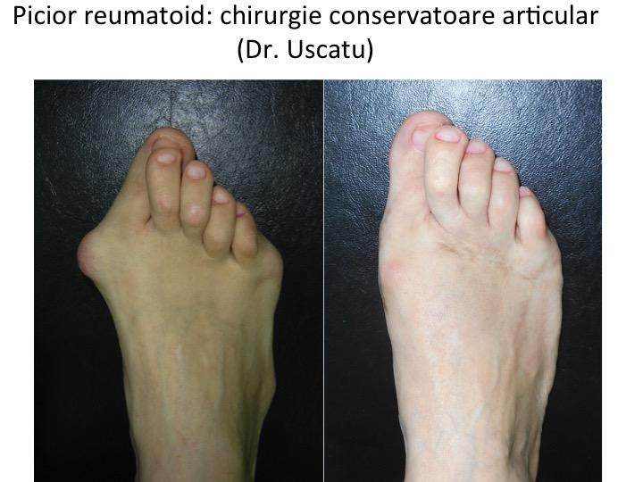 Picior reumatoid pre- si post-operator