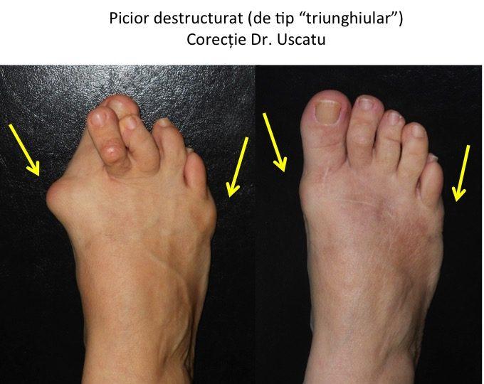 Picior triunghiular operat