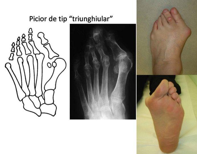 Picior triunghiular reumatoid