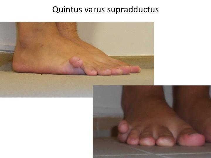 Quintus varus barbat