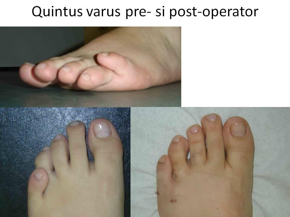 Quintus varus pre- si post-operator