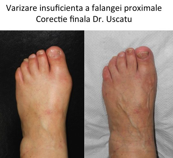Varizare insuficienta
