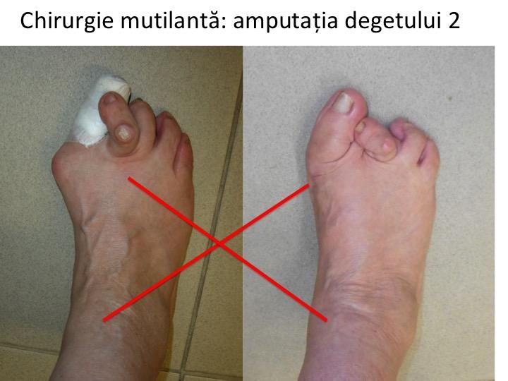 artrita falangei digitale