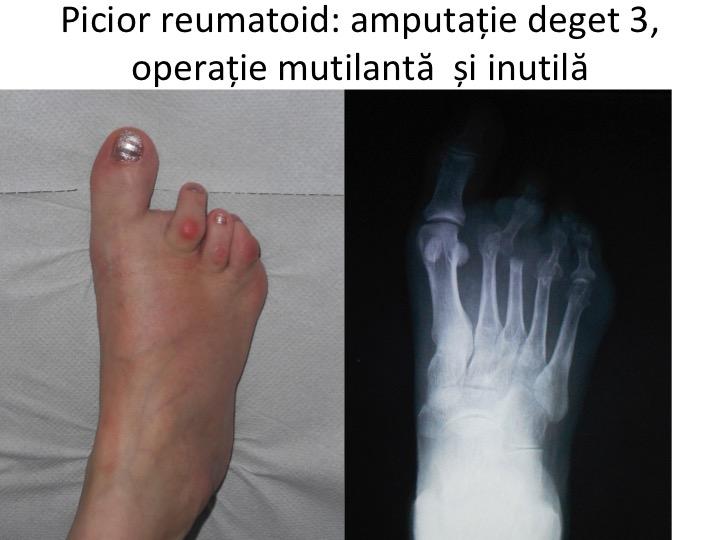 Articulațiile degetelor de la picioare - simptome, cauze, diagnostic, tratament