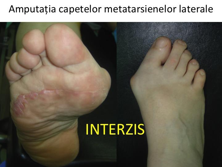 tratamentul articulației metatarsiene)