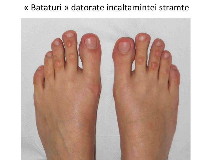 Artrita degete picioare