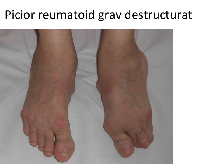 boli articulare ale piciorului)