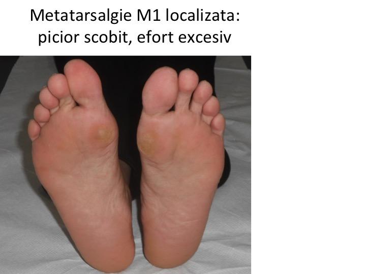 Metatarsalgie M1