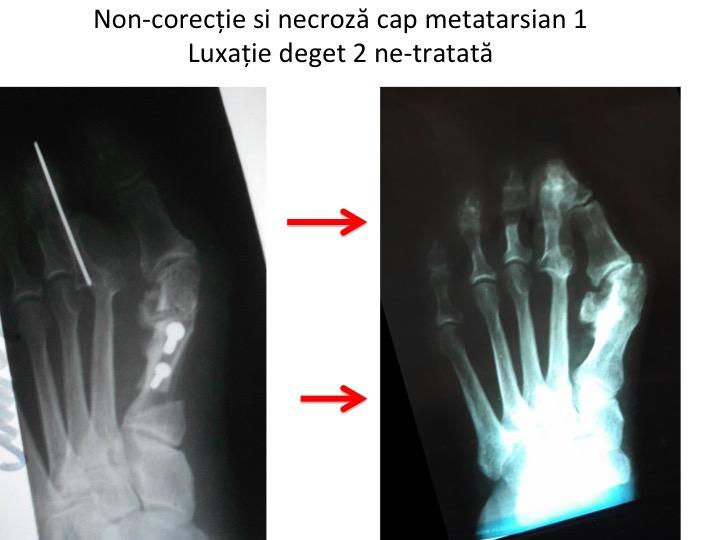 Artroza deformantă a articulației primului deget, Yoga pentru artroza genunchiului video de