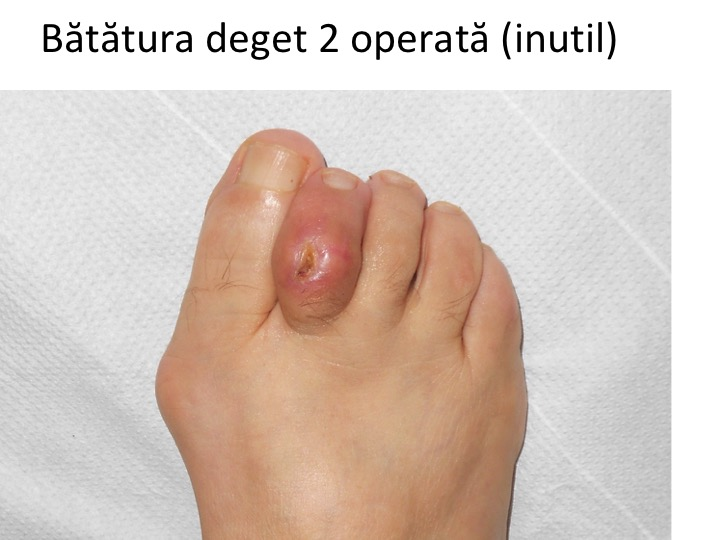 Ligamente degete picior