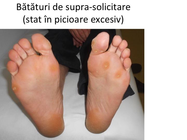 infecția articulațiilor piciorului)