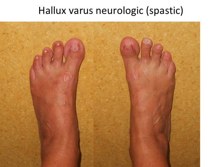 Hallux varus neurologic