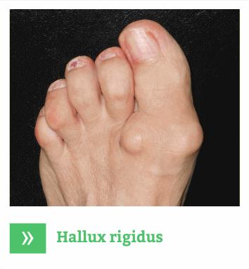 Hallux Rigidus - Artroza picioare