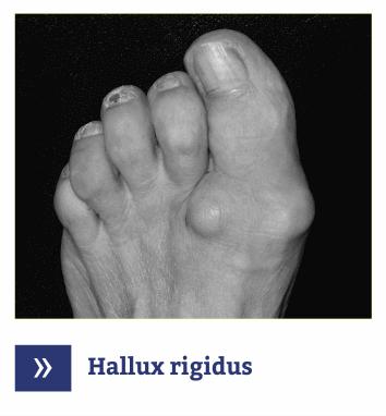 Hallux Rigidus - Artroza picior