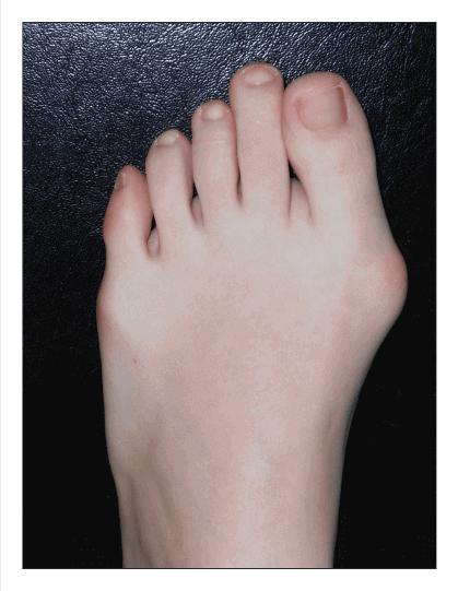 Monturi picioare