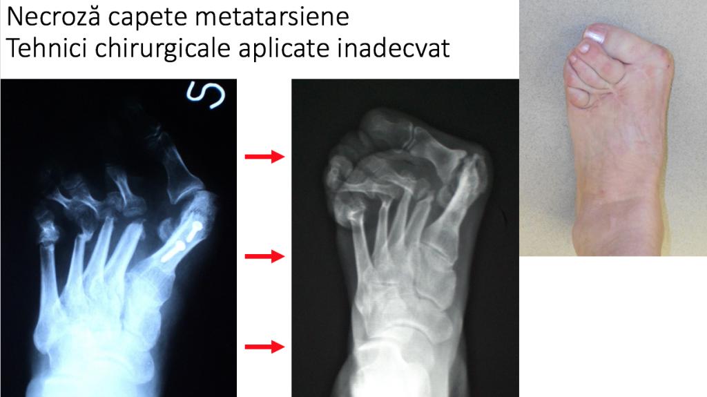 artroza primei articulații metatarsiene