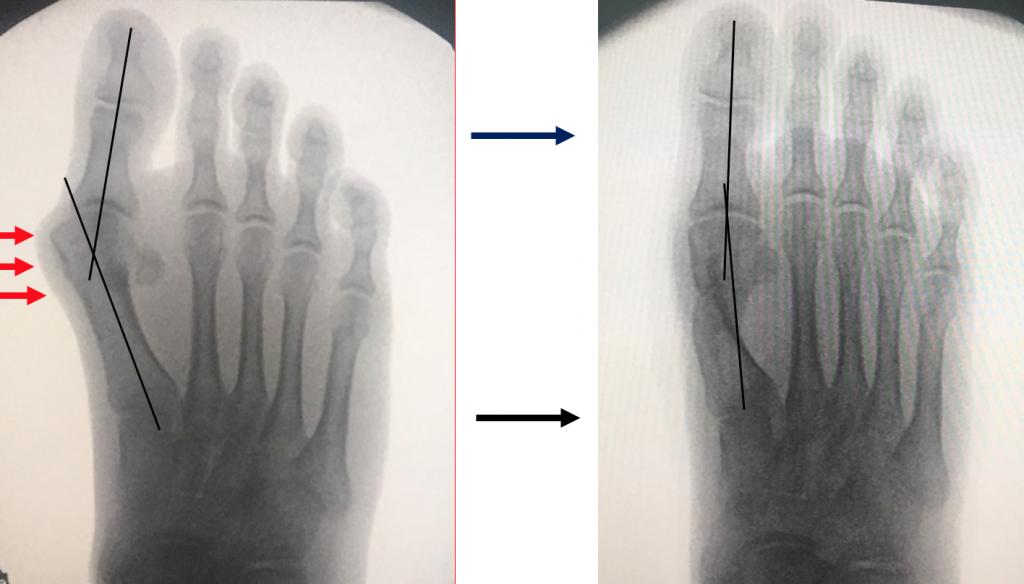operatie monturi picioare