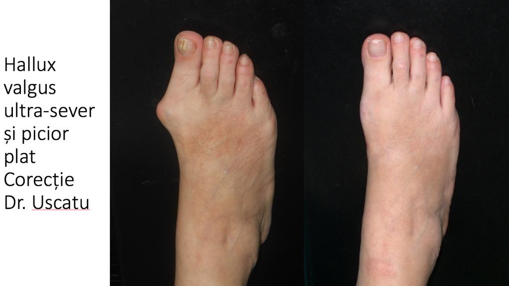 cura edemului piciorului