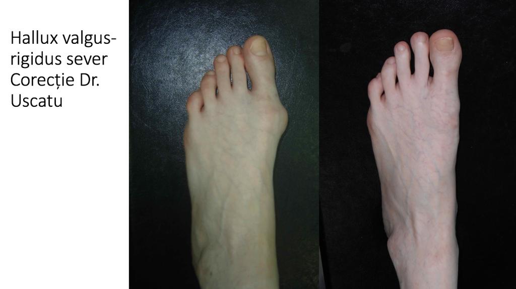 tratamentul articulației piciorului hallux valgus)
