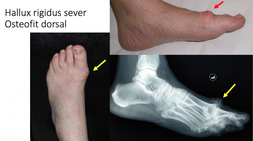 frecare articulară pentru artrită