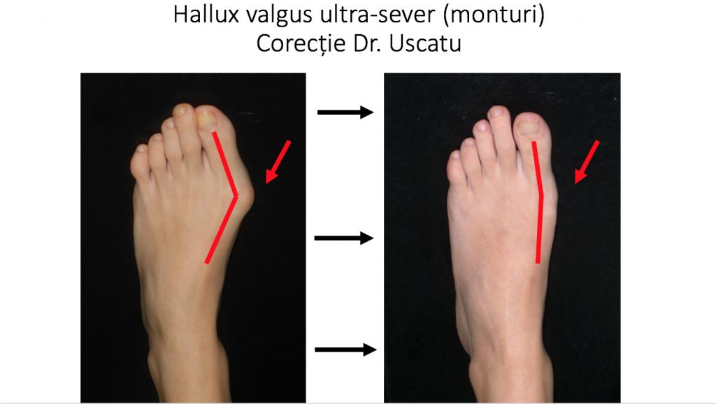 inflamația riguroasă pe picior în varicoză